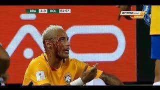 21st Century Saddest Injuries in Football