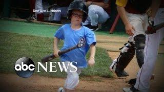 Bat Boy, 9-Years-Old, Killed by Bat