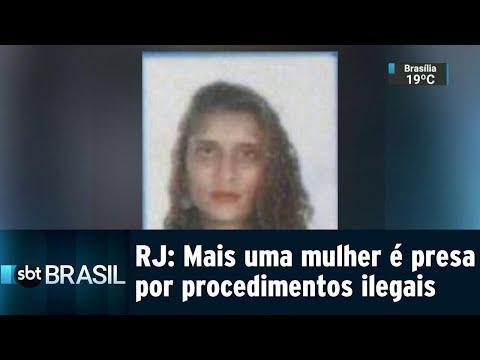 Falsa médica acusada de colocar silicone ilegalmente é presa no Rio   SBT Brasil (30/07/18)