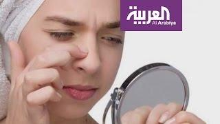 صباح العربية : أفضل الطرق لتخلص من الرؤوس السوداء؟