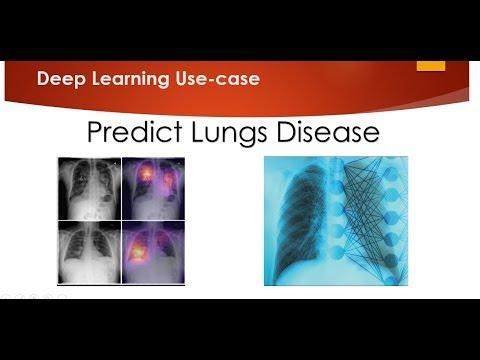 Predicting Lungs Disease using Deep Learning