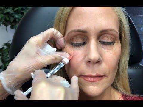 Dermal Filler Under Eyes /Tear Trough ~Restylane and Radiesse