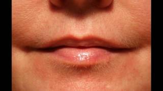 How Hormones Affect Chin Hair And Acne
