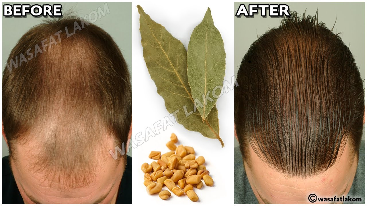 the Indian secret, 🌿 to grow hair at a rocket speed and treat baldness from the first week