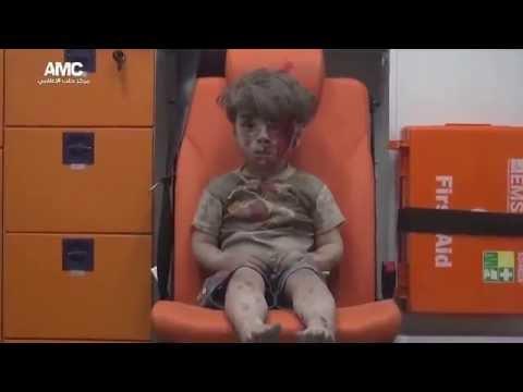 sedihnya anak suriah omran daqneesh saat di evakuasi team medis