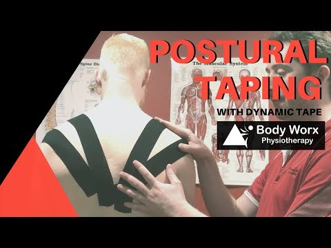 Postural taping with dynamic tape - BodyWorx Physiotherapy Newcastle