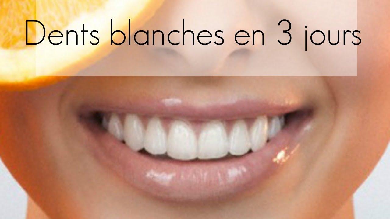 que faire pour avoir des dents blanches