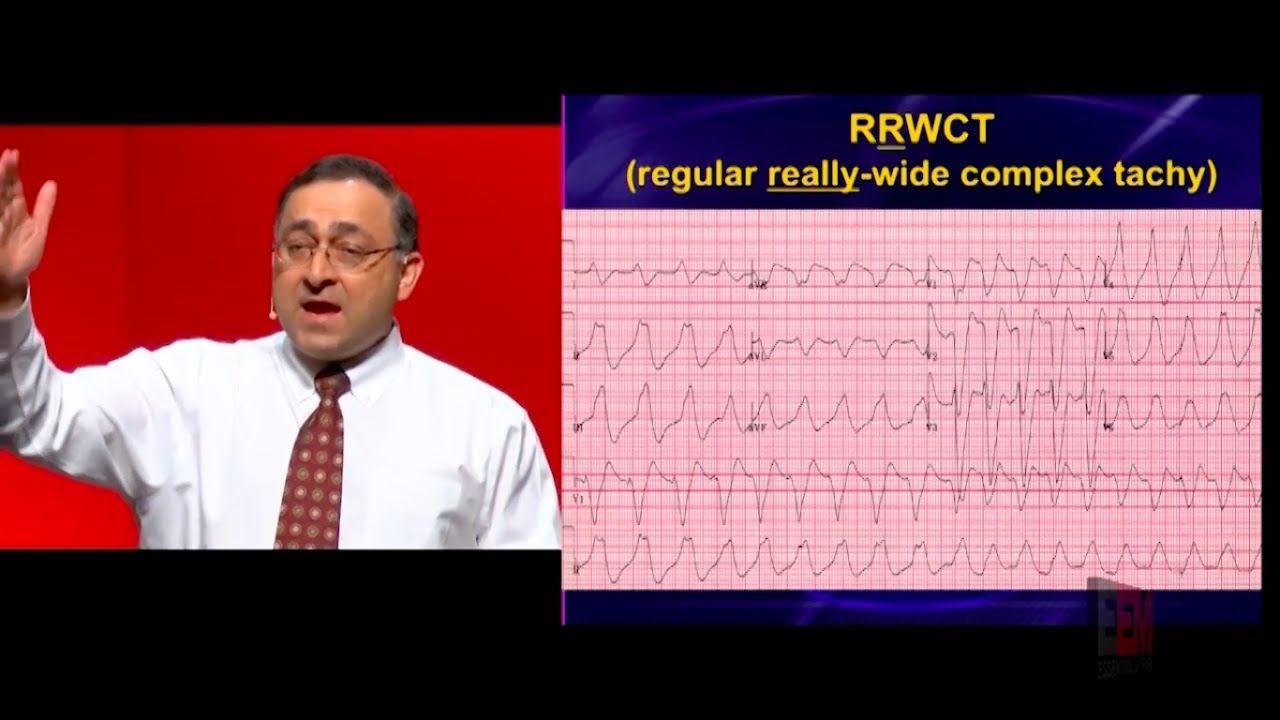 Download How do you avoid a clean kill with wide complex tachycardias?
