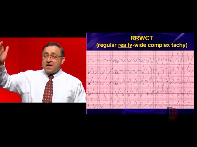 How do you avoid a clean kill with wide complex tachycardias?