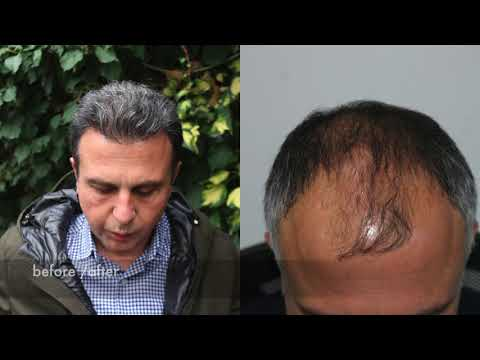 Hair Transplant Before and After, NW 4 Hairline Before and After, Hairline Clinic