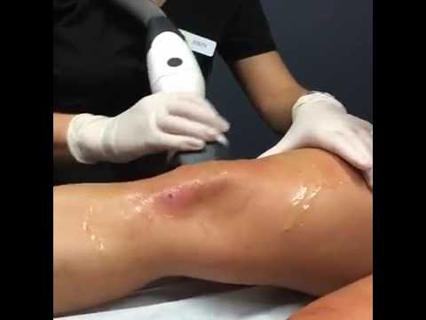 Non - Invasive Skin Tightening Knee Treatment with Dr. J  #TopMiamiDermatologist
