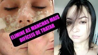 🌺COMO ELIMINAR MANCHAS DE MELASMA, GRAVIDEZ, ESPINHAS (Receita potente)
