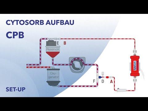 CytoSorb-Aufbau: Einsatz im kardiopulmonalen Bypass