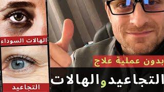 تجميل الوجه بدون عمليه : علاج الهالات السوداء تحت العين و علاج تجاعيد الوجه