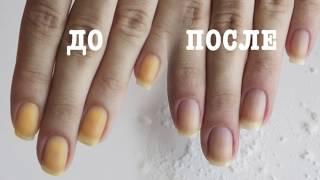 видео Как убрать желтизну с ногтей