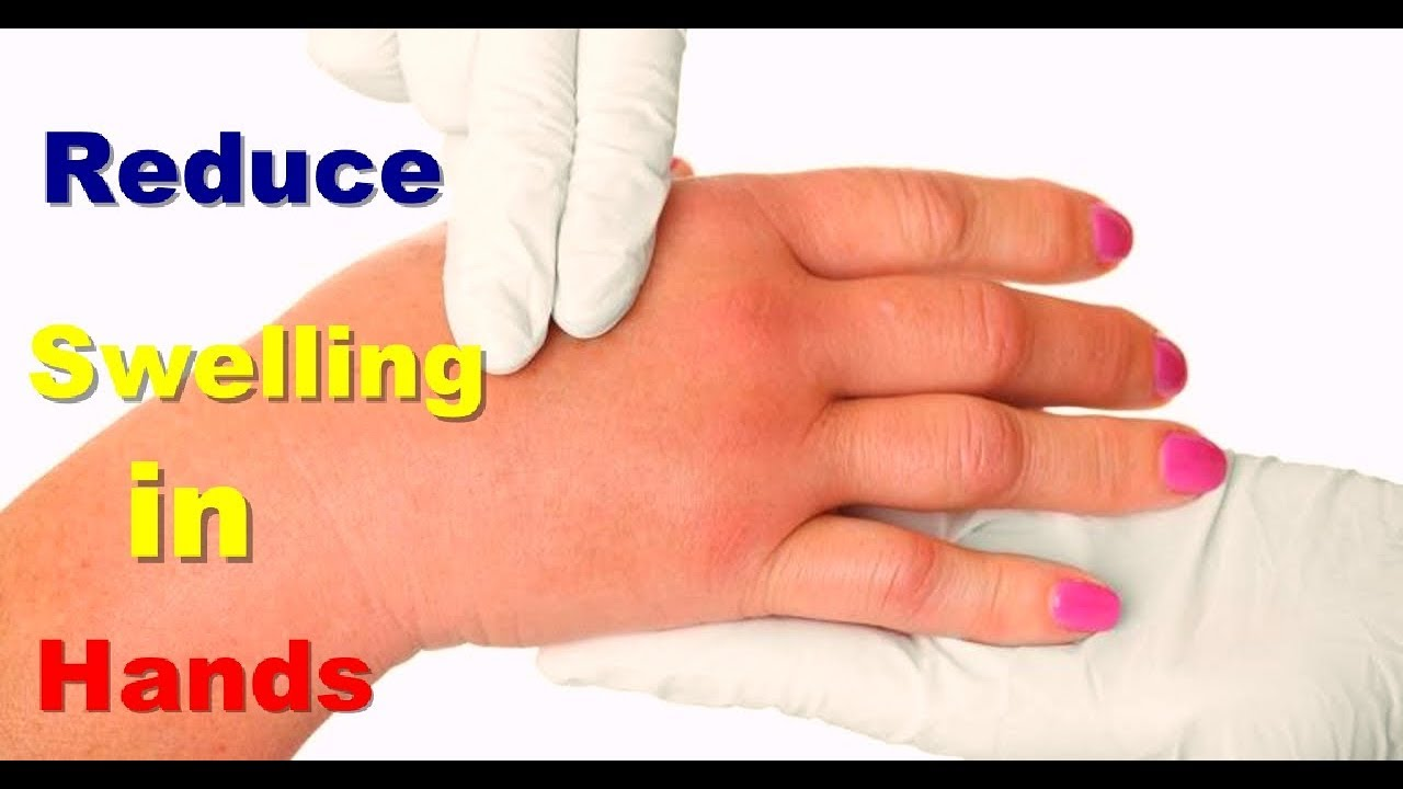 How to reduce swelling 22