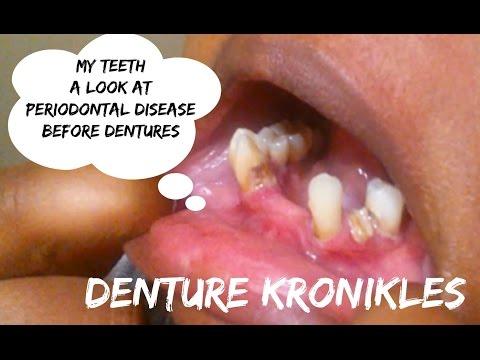 Denture Kronikles: A Look at Periodontal Disease - My Teeth Before E-Day