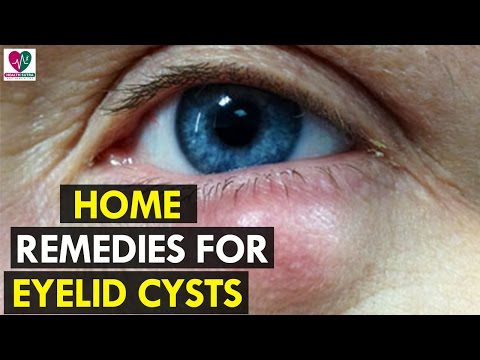 Home Reme For Eyelid Cysts