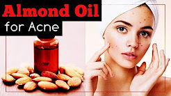 hqdefault - Can Almond Oil Cause Acne