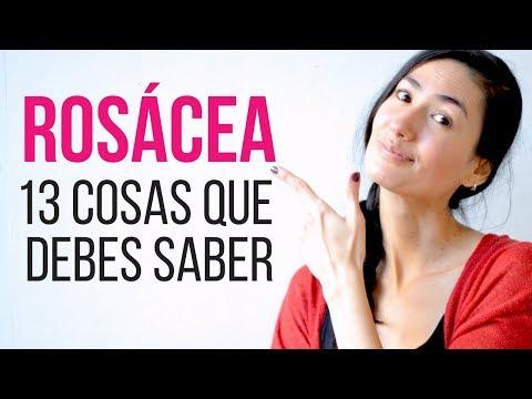 hqdefault - Enfermedades De La Piel Acne Rosacea
