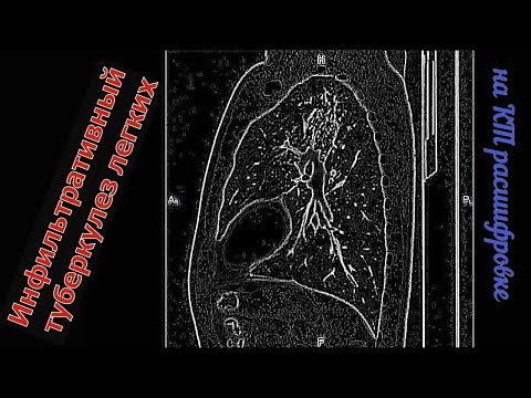 Очагово ИНФИЛЬТРАТИВНЫЙ ТУБЕРКУЛЕЗ ЛЕГКИХ на расшифровке КТ органов грудной клетки