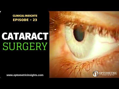 5 Surprising Risks for Dry Eye