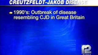 What Is Creutzfeldt-Jakob Disease?