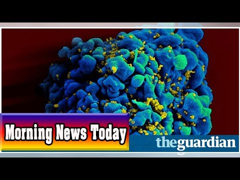 Cancer drug offers tantalising hope for hiv cure| Morning News