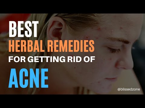 ★ Best Herbal Home Remedies For Getting Rid Of ACNE ★