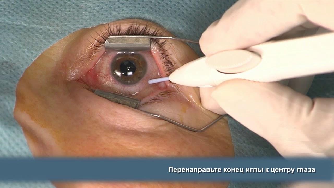 becsaphatja a szemészt