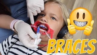our-9-year-old-gets-her-braces-the-leroys