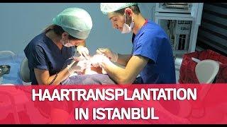 ABLAUF HAARTRANSPLANTATION IN ISTANBUL | BARTMANN