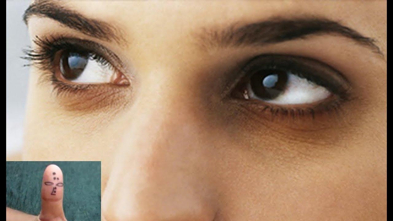 látástorna a szarvas szemek számára