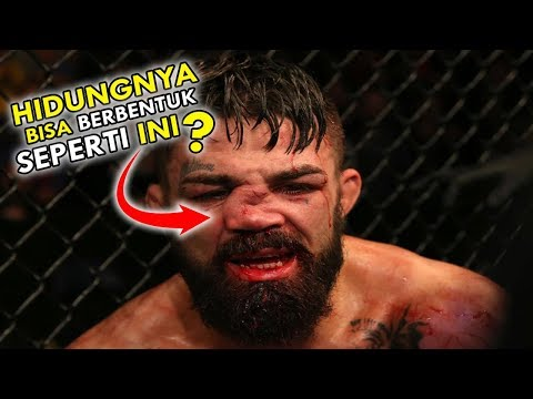 Viral, Hidung Petarung MMA Ini Membentuk Huruf Z Disodok Dengkul Lawannya