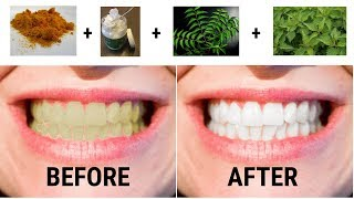 Teeth Whitening with neem powder (and other methods)