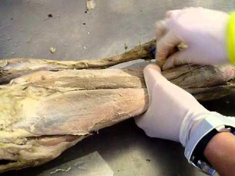 Anatomia musculos de miembro posterior del Equino - YouTube