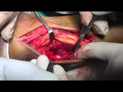 Atypical ankle fracture dislocation surgery video