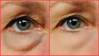 2 STEPS TO GET RID OF PUFFY EYES, DRY UNDER EYES, EYE BAGS, AND DAR...