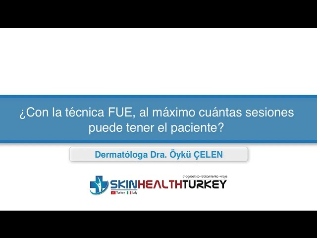 Trasplante Capilar Turquía- ¿Con la técnica FUE, al máximo cuántas sesiones puede tener el paciente?