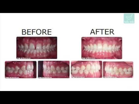 Difficult Invisalign Cases Before and After Treatedby Dr. Bella Shen Garnett