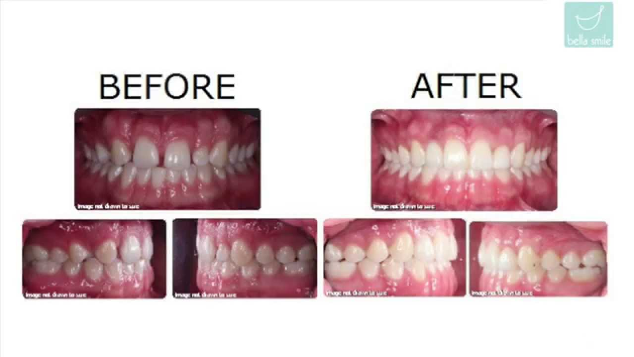 Difficult Invisalign Cases Before And After Treated By Dr