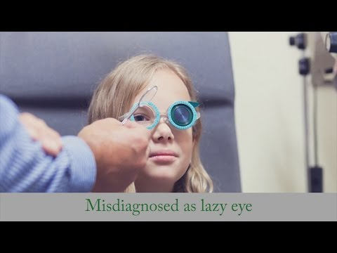 Misdiagnosed As Lazy Eye - Strabismus Treatment W/o Surgery As Adult
