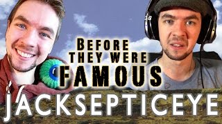 Jack Septic Eye  - Before They Were Famous