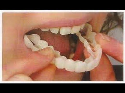مشكلة مريض السكر مع تركيب الاسنان الثابتة