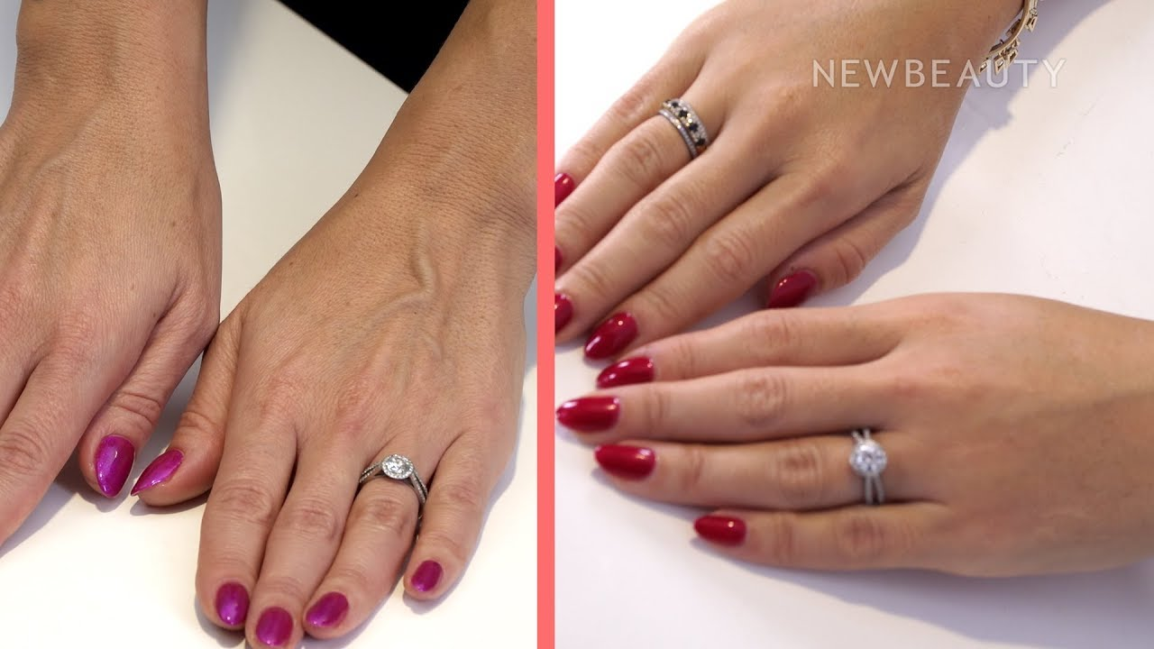 hand rejuvenation and filler i between the before and after ep  1