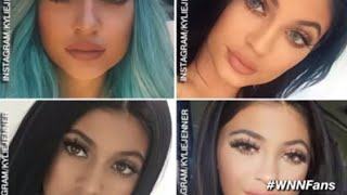 Kylie Jenner Admits to Using Lip Fillers