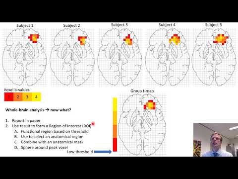 Region of Interest Analysis VIDEO SHORT