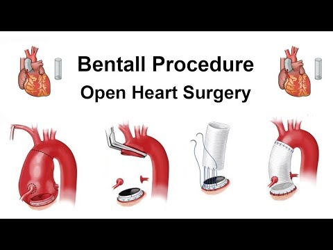 How to do Bentall Procedure - Ascending Aortic Aneurysm - Bentall Procedure - Open Heart Surgery
