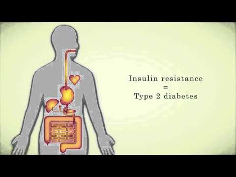Insulin Resistance - Nutrition Education Resources Online (NERO)