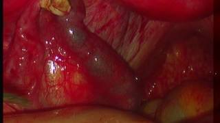 Еctopic pregnancy. Внематочная беременность  Лапароскопия